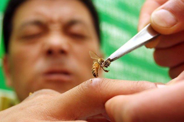 пчелы лечат болезни укус