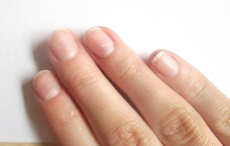 ногти, как укрепить, витамины, грибок
